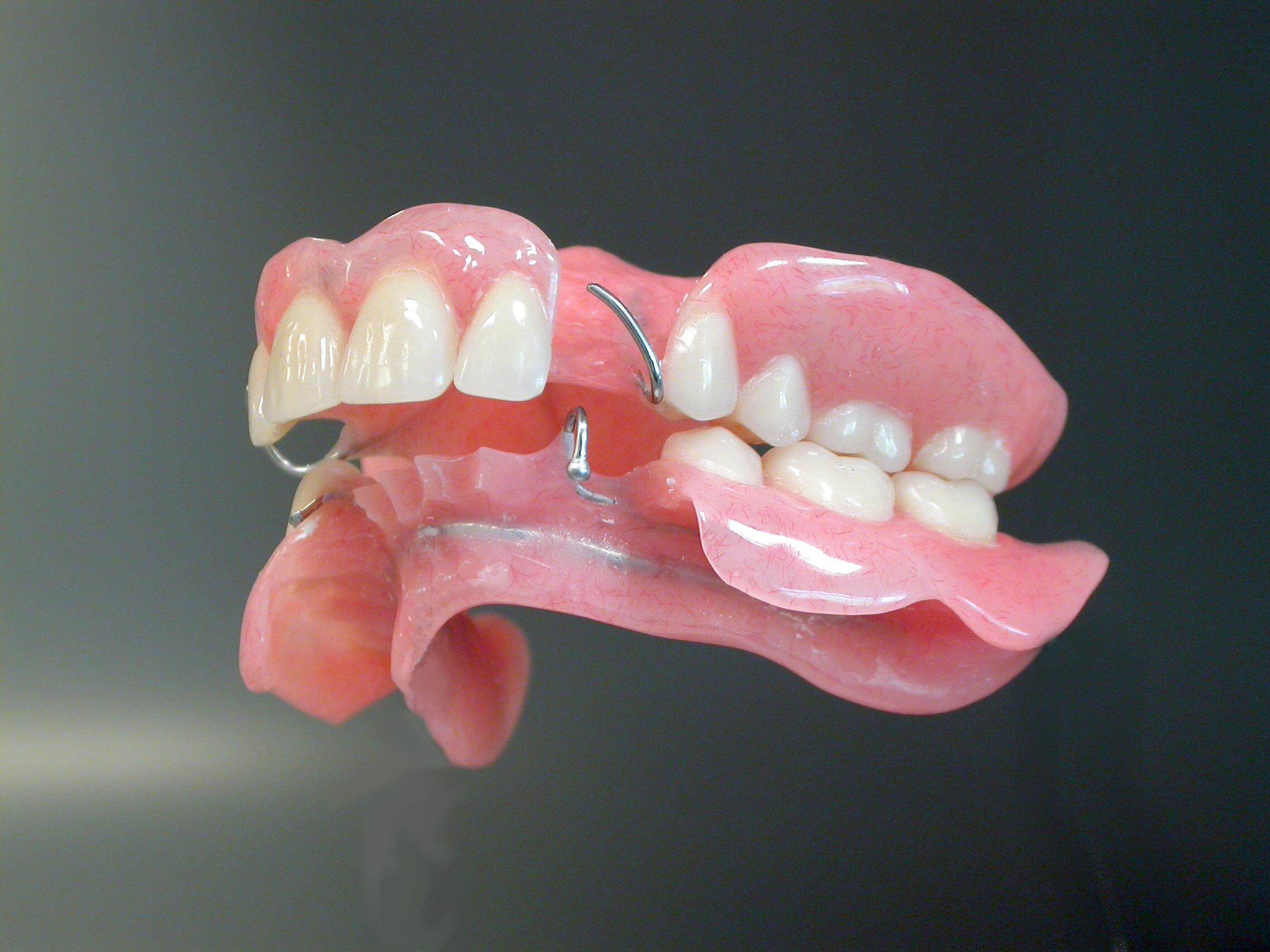 Partiële plaatprothese