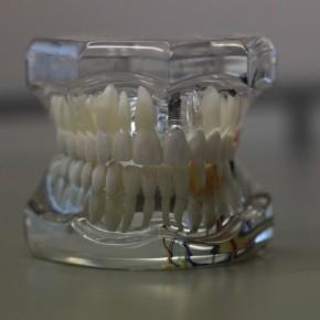 dentistry-668214_1280-715x408